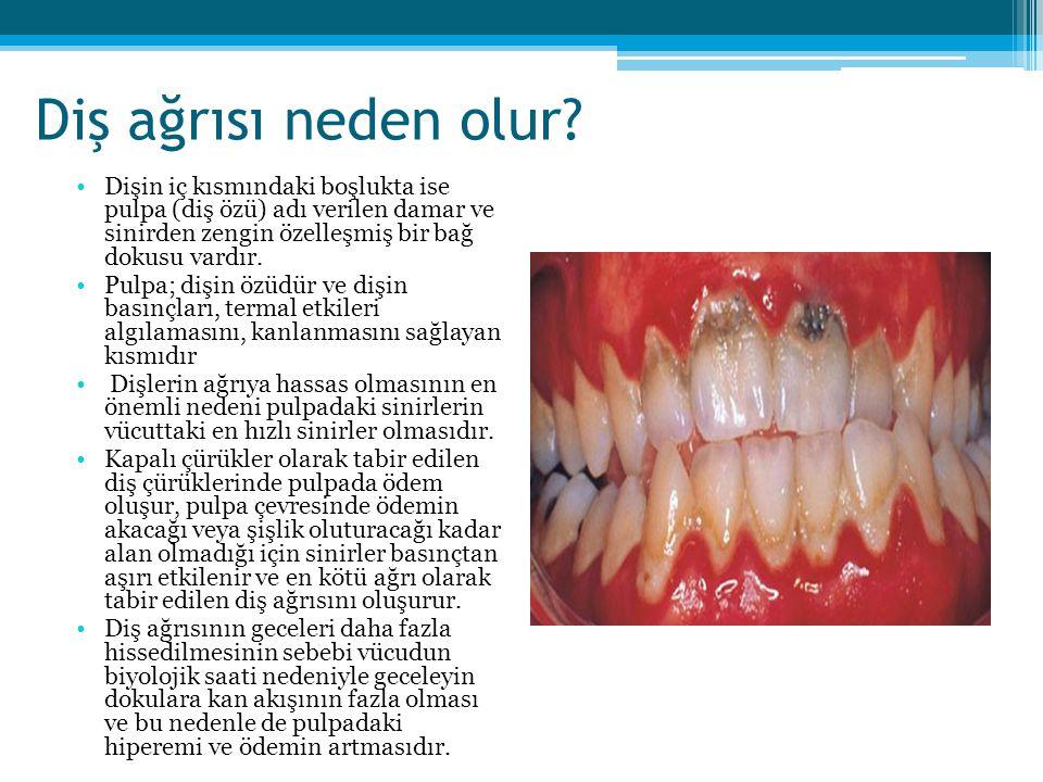 Diş ağrısı neden olur? Dişin iç kısmındaki boşlukta ise pulpa (diş özü) adı verilen damar ve sinirden zengin özelleşmiş bir bağ dokusu vardır. Pulpa;