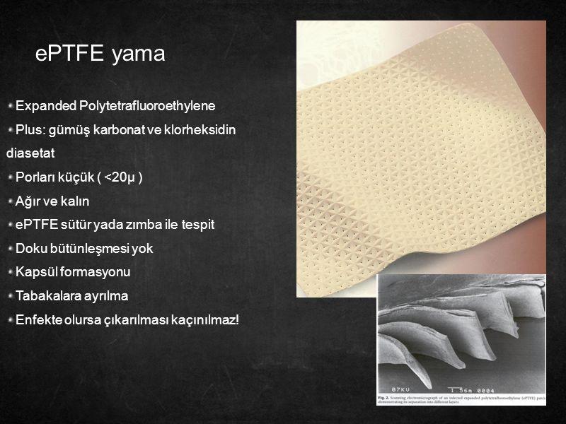 ePTFE yama Expanded Polytetrafluoroethylene Plus: gümüş karbonat ve klorheksidin diasetat Porları küçük ( <20µ ) Ağır ve kalın ePTFE sütür yada zımba