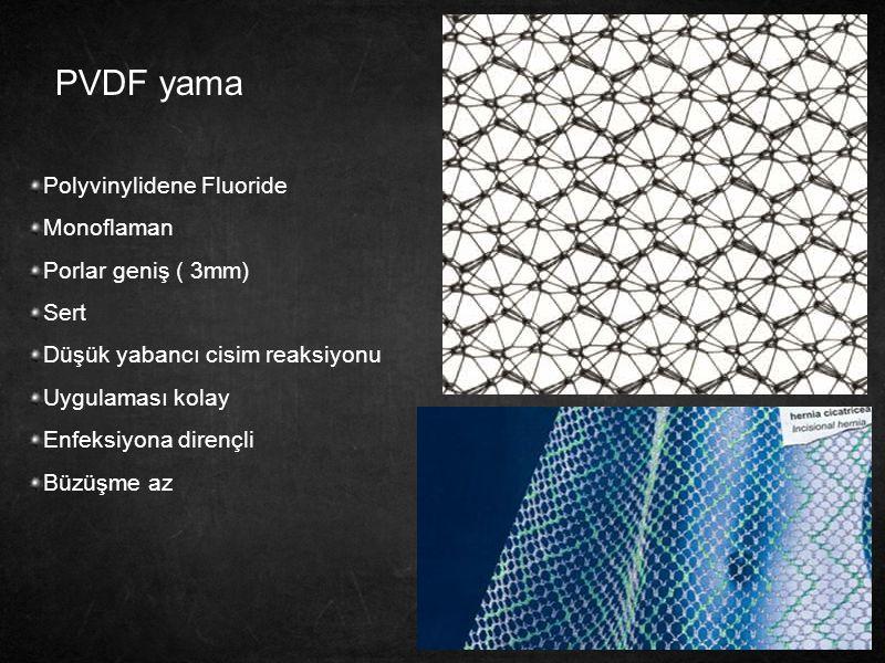 PVDF yama Polyvinylidene Fluoride Monoflaman Porlar geniş ( 3mm) Sert Düşük yabancı cisim reaksiyonu Uygulaması kolay Enfeksiyona dirençli Büzüşme az