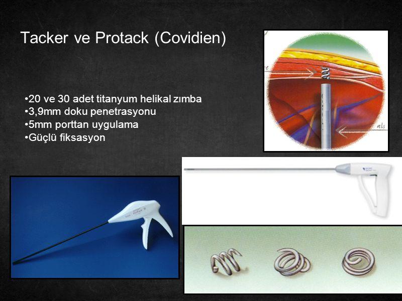32 Tacker ve Protack (Covidien) 20 ve 30 adet titanyum helikal zımba 3,9mm doku penetrasyonu 5mm porttan uygulama Güçlü fiksasyon