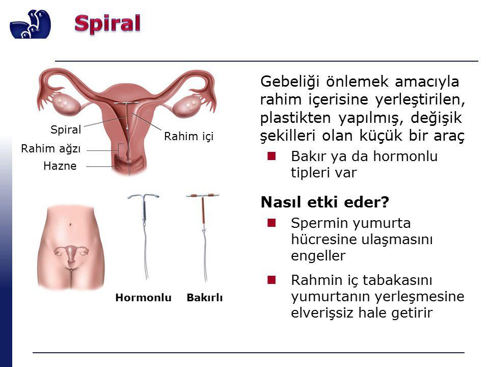 Spiral Hazne Gebeliği önlemek amacıyla rahim içerisine yerleştirilen, plastikten yapılmış, değişik şekilleri olan küçük bir araç Bakır ya da hormonlu tipleri var Nasıl etki eder.