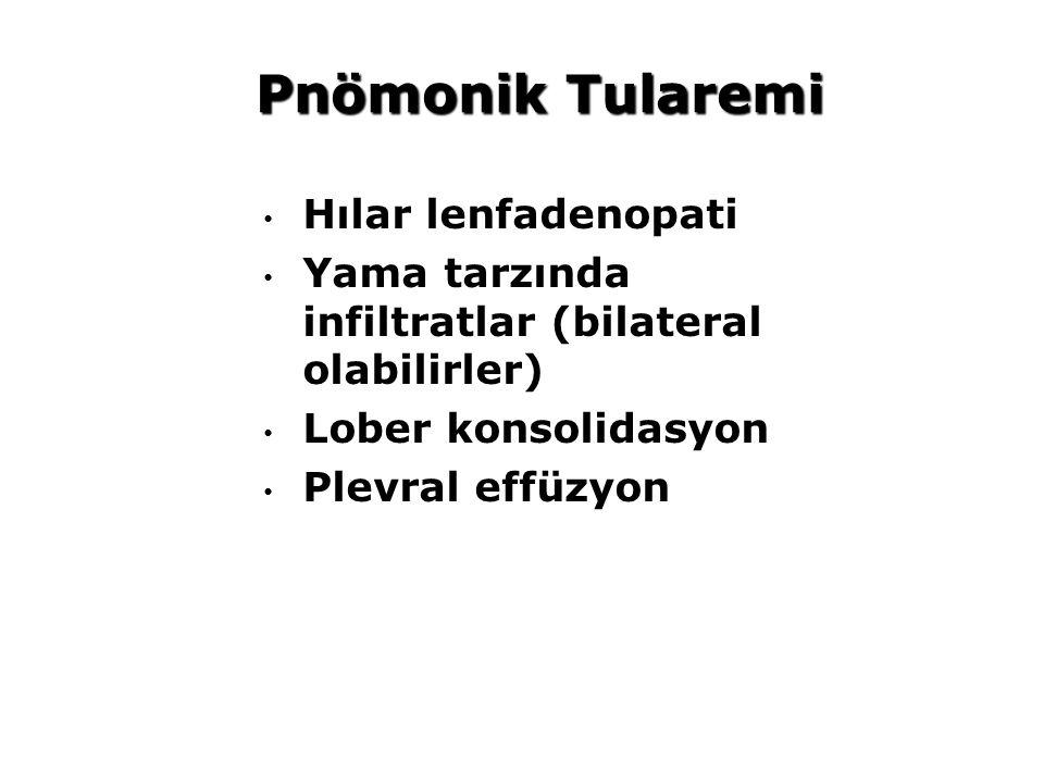 Pnömonik Tularemi Hılar lenfadenopati Yama tarzında infiltratlar (bilateral olabilirler) Lober konsolidasyon Plevral effüzyon