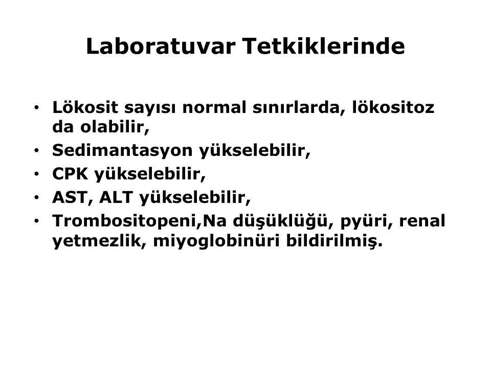 Laboratuvar Tetkiklerinde Lökosit sayısı normal sınırlarda, lökositoz da olabilir, Sedimantasyon yükselebilir, CPK yükselebilir, AST, ALT yükselebilir