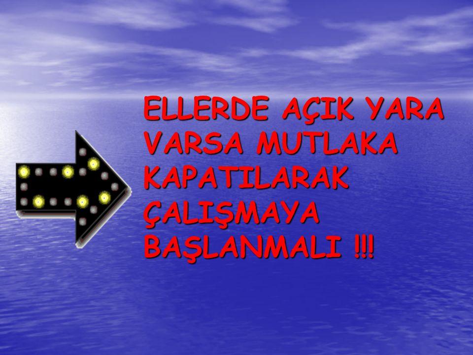 ELLERDE AÇIK YARA VARSA MUTLAKA KAPATILARAK ÇALIŞMAYA BAŞLANMALI !!!