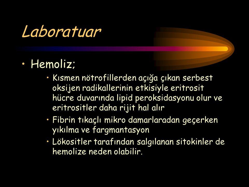 Laboratuar Hemoliz; Kısmen nötrofillerden açığa çıkan serbest oksijen radikallerinin etkisiyle eritrosit hücre duvarında lipid peroksidasyonu olur ve