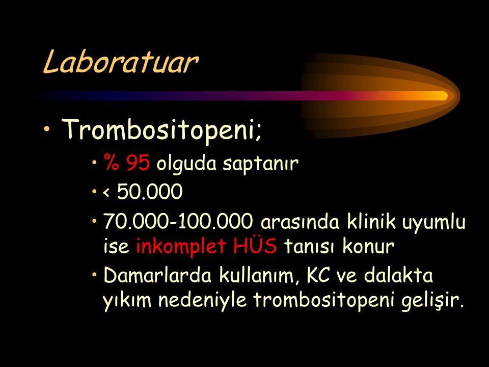 Laboratuar Trombositopeni; % 95 olguda saptanır < 50.000 70.000-100.000 arasında klinik uyumlu ise inkomplet HÜS tanısı konur Damarlarda kullanım, KC