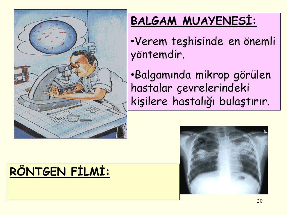 20 RÖNTGEN FİLMİ: BALGAM MUAYENESİ: Verem teşhisinde en önemli yöntemdir. Balgamında mikrop görülen hastalar çevrelerindeki kişilere hastalığı bulaştı