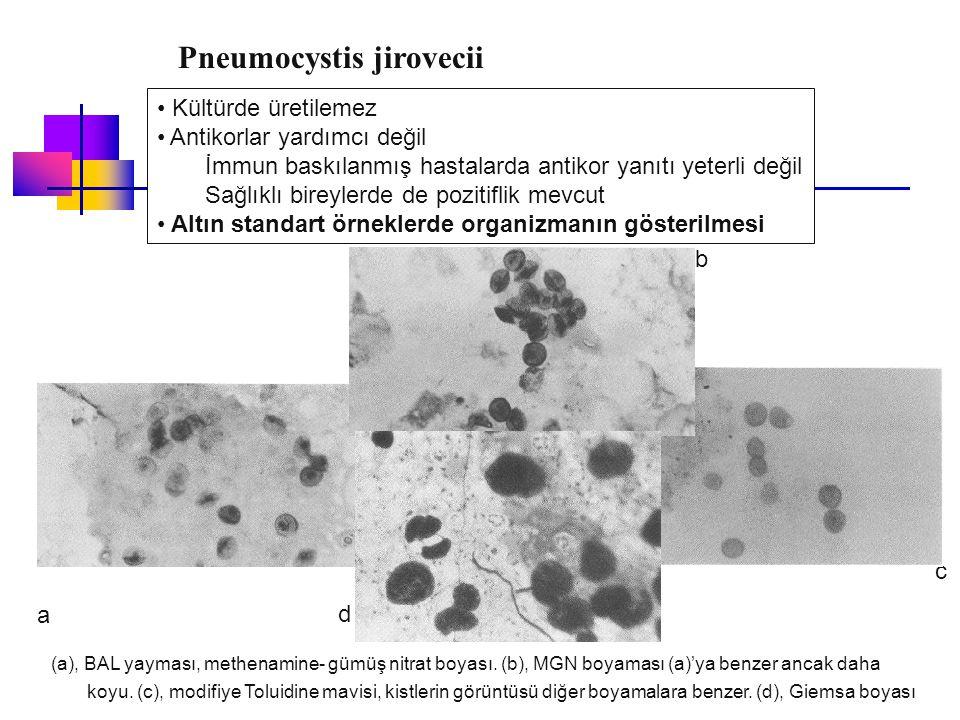 Kültürde üretilemez Antikorlar yardımcı değil İmmun baskılanmış hastalarda antikor yanıtı yeterli değil Sağlıklı bireylerde de pozitiflik mevcut Altın
