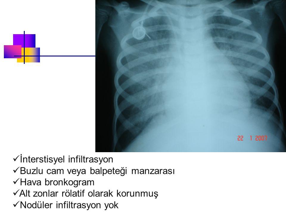 Soru 1: Olası tanınız nedir .a. Viral pnömoni b. Bakteriyel pnömoni c.