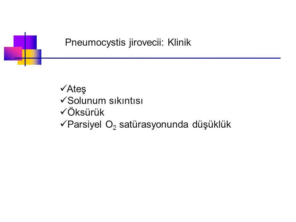 Ateş Solunum sıkıntısı Öksürük Parsiyel O 2 satürasyonunda düşüklük Pneumocystis jirovecii: Klinik