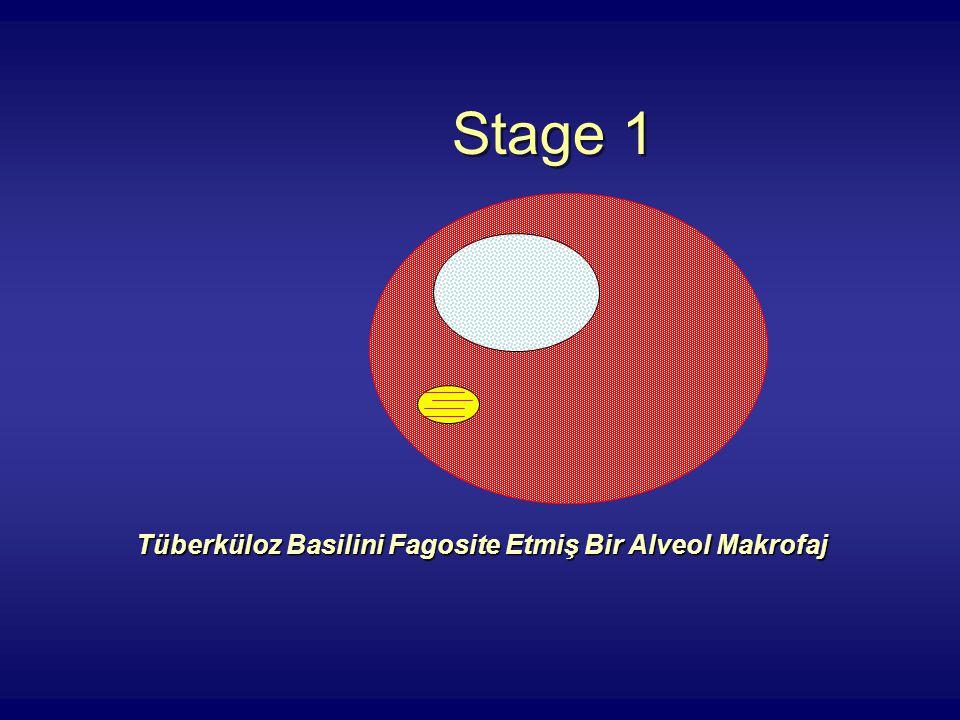 Stage 1 Tüberküloz Basilini Fagosite Etmiş Bir Alveol Makrofaj