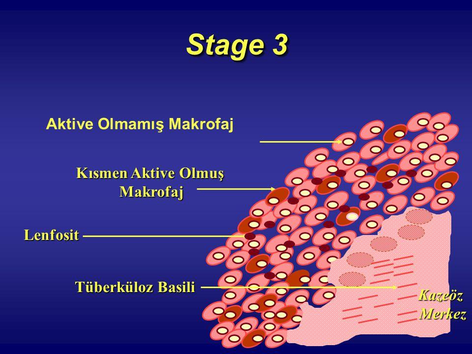 Stage 3 Aktive Olmamış Makrofaj Kısmen Aktive Olmuş Makrofaj Lenfosit Tüberküloz Basili KazeözMerkez