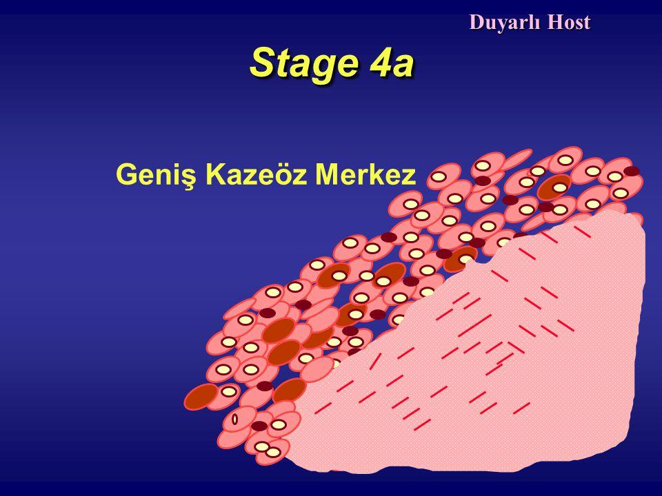 Stage 4a Geniş Kazeöz Merkez Duyarlı Host