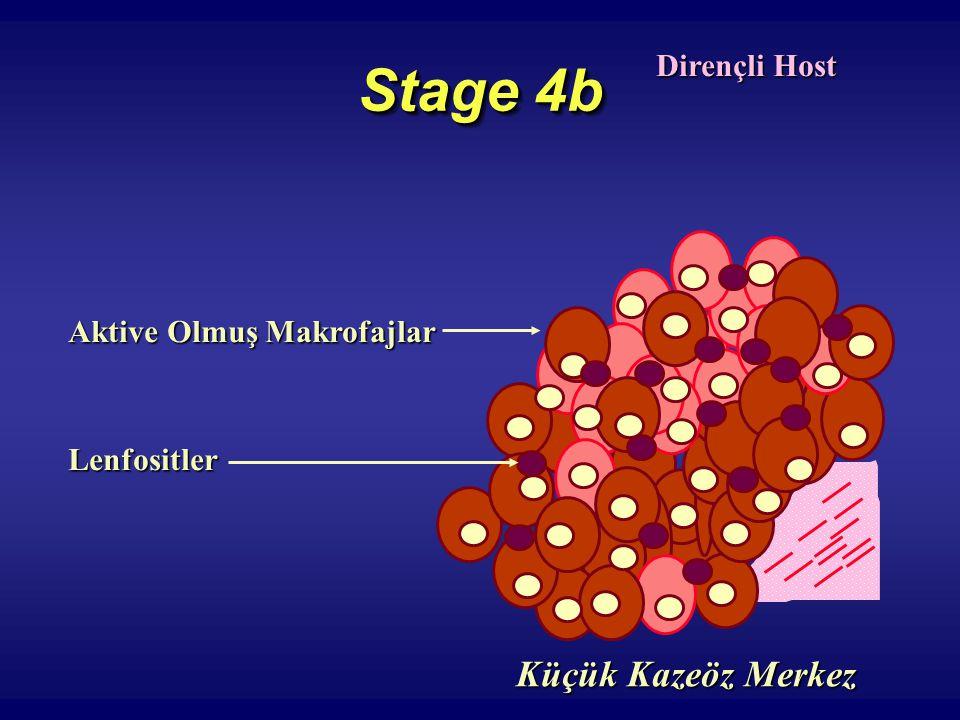 Stage 4b Dirençli Host Aktive Olmuş Makrofajlar Lenfositler Küçük Kazeöz Merkez