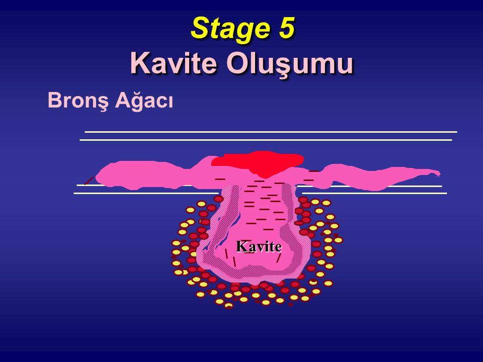 Stage 5 Kavite Oluşumu Bronş Ağacı Kavite