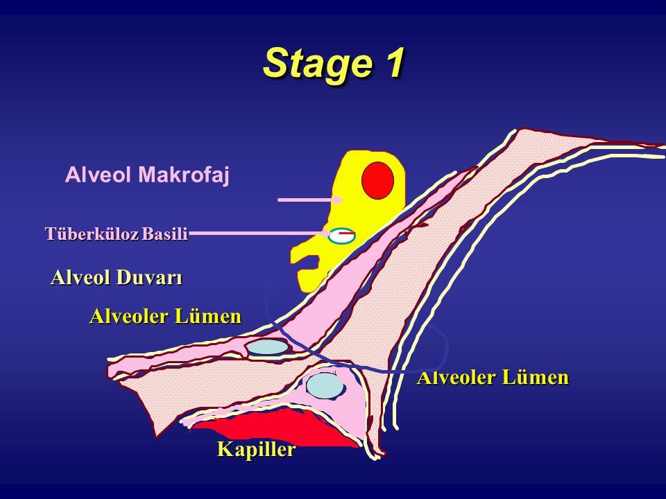 Stage 1 Alveol Makrofaj Alveoler Lümen Tüberküloz Basili Alveoler Lümen Alveol Duvarı Kapiller