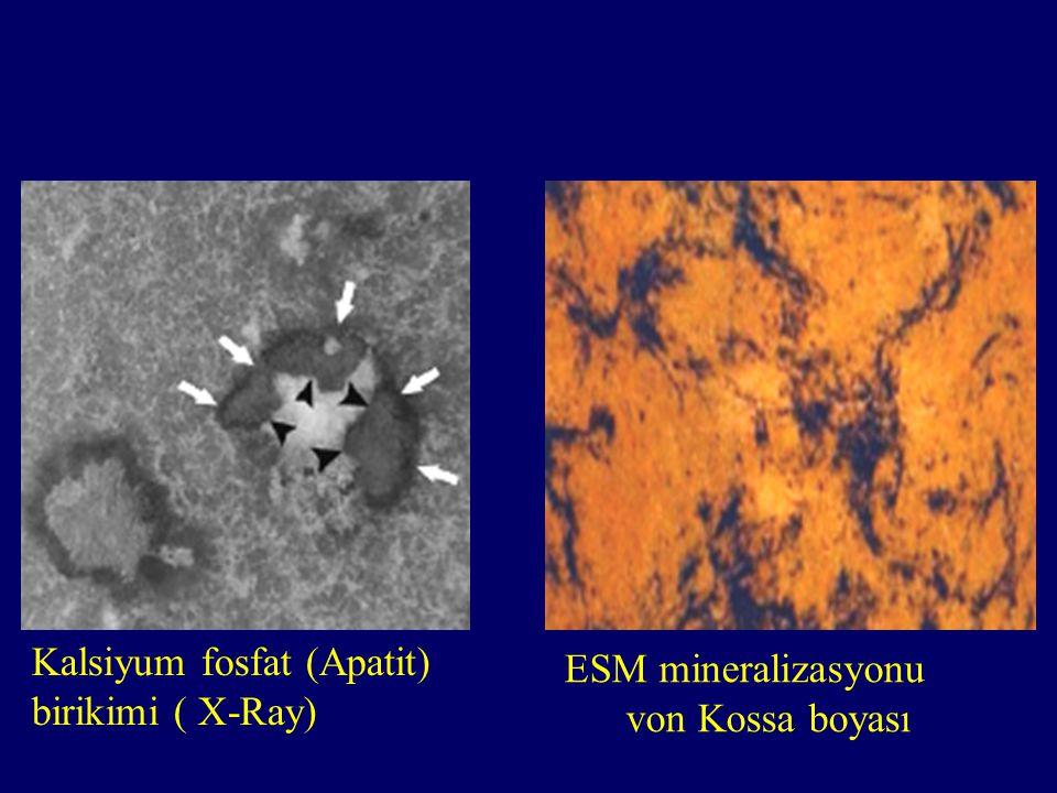 ESM mineralizasyonu von Kossa boyası Kalsiyum fosfat (Apatit) birikimi ( X-Ray)