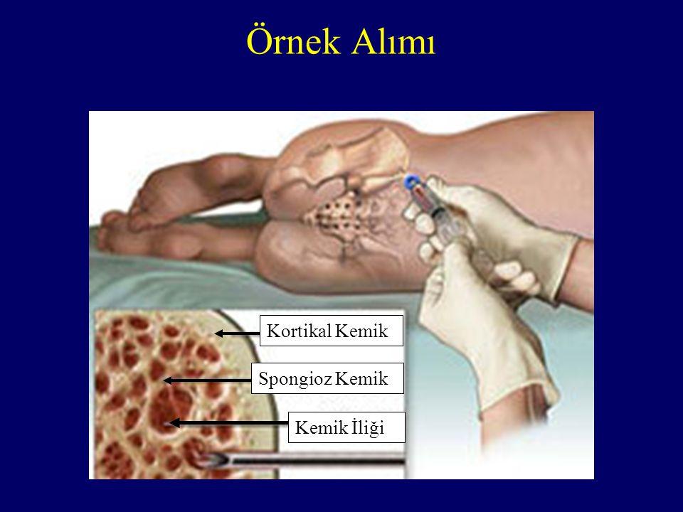 Örnek Alımı Kemik İliği Spongioz Kemik Kortikal Kemik