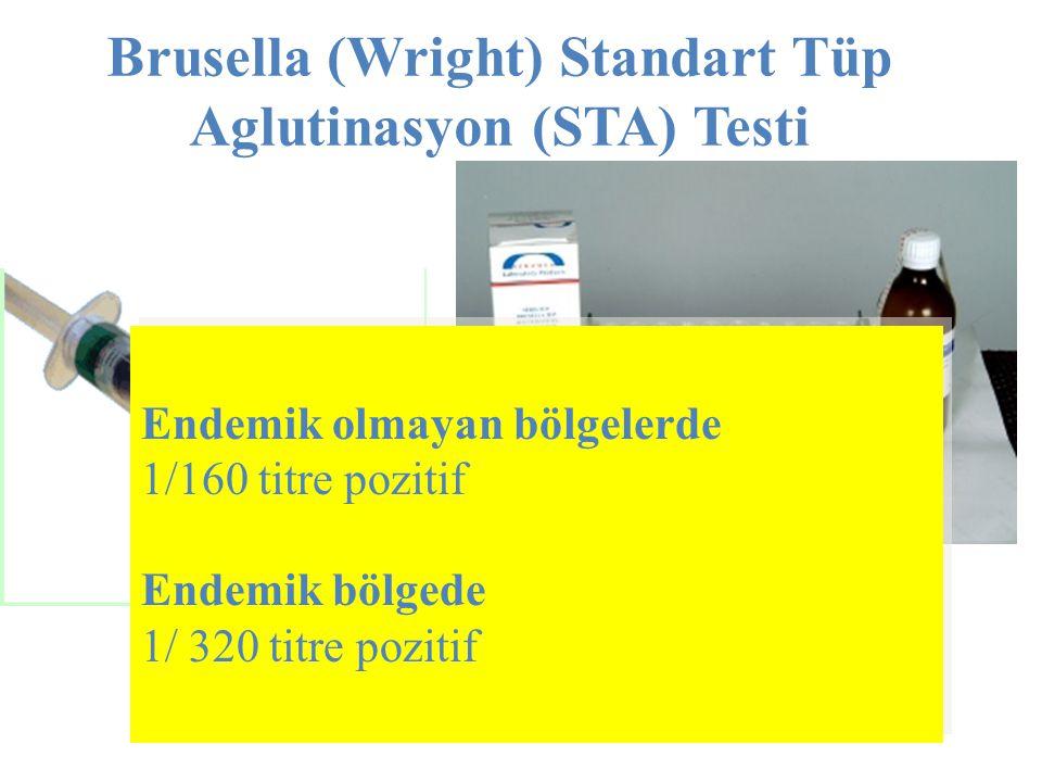 Brusella (Wright) Standart Tüp Aglutinasyon (STA) Testi Endemik olmayan bölgelerde 1/160 titre pozitif Endemik bölgede 1/ 320 titre pozitif Endemik ol