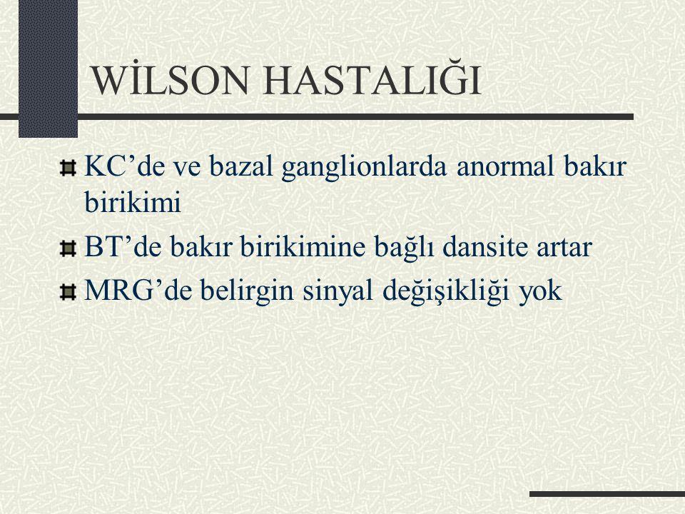 WİLSON HASTALIĞI KC'de ve bazal ganglionlarda anormal bakır birikimi BT'de bakır birikimine bağlı dansite artar MRG'de belirgin sinyal değişikliği yok