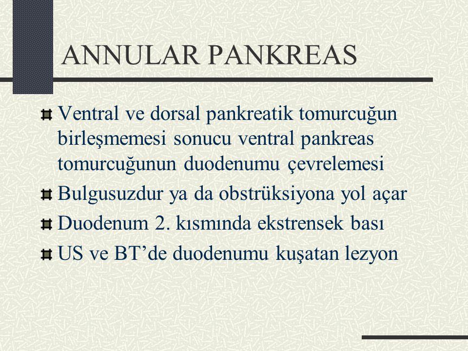 ANNULAR PANKREAS Ventral ve dorsal pankreatik tomurcuğun birleşmemesi sonucu ventral pankreas tomurcuğunun duodenumu çevrelemesi Bulgusuzdur ya da obstrüksiyona yol açar Duodenum 2.