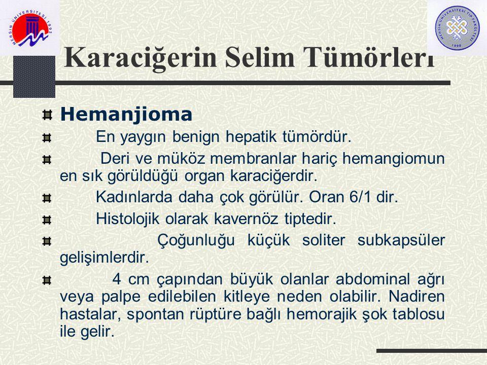 Karaciğerin Selim Tümörleri Hemanjioma En yaygın benign hepatik tümördür.
