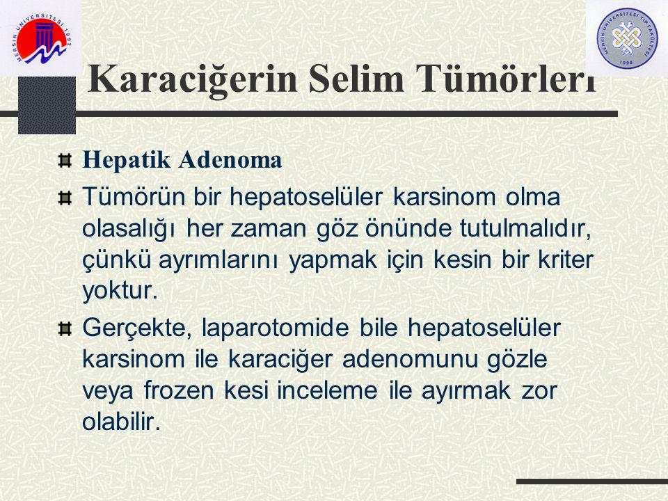 Karaciğerin Selim Tümörleri Hepatik Adenoma Tümörün bir hepatoselüler karsinom olma olasalığı her zaman göz önünde tutulmalıdır, çünkü ayrımlarını yapmak için kesin bir kriter yoktur.