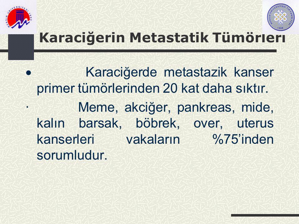 Karaciğerin Metastatik Tümörleri  Karaciğerde metastazik kanser primer tümörlerinden 20 kat daha sıktır.