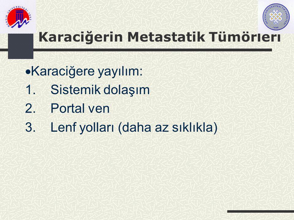 Karaciğerin Metastatik Tümörleri  Karaciğere yayılım: 1.