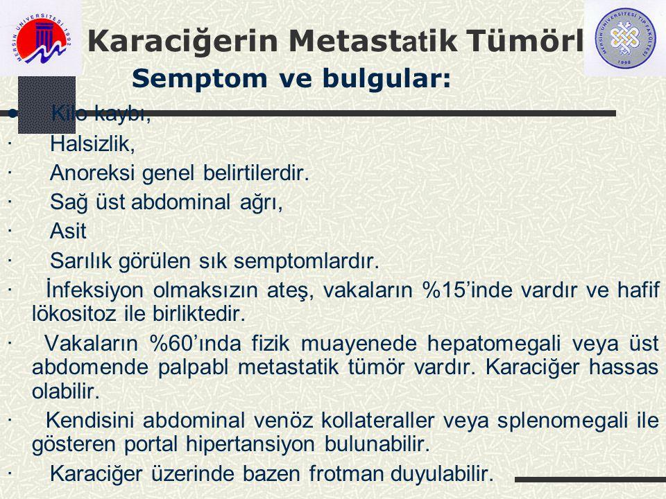 Karaciğerin Metast at ik Tümörleri Semptom ve bulgular:  Kilo kaybı, · Halsizlik, · Anoreksi genel belirtilerdir.