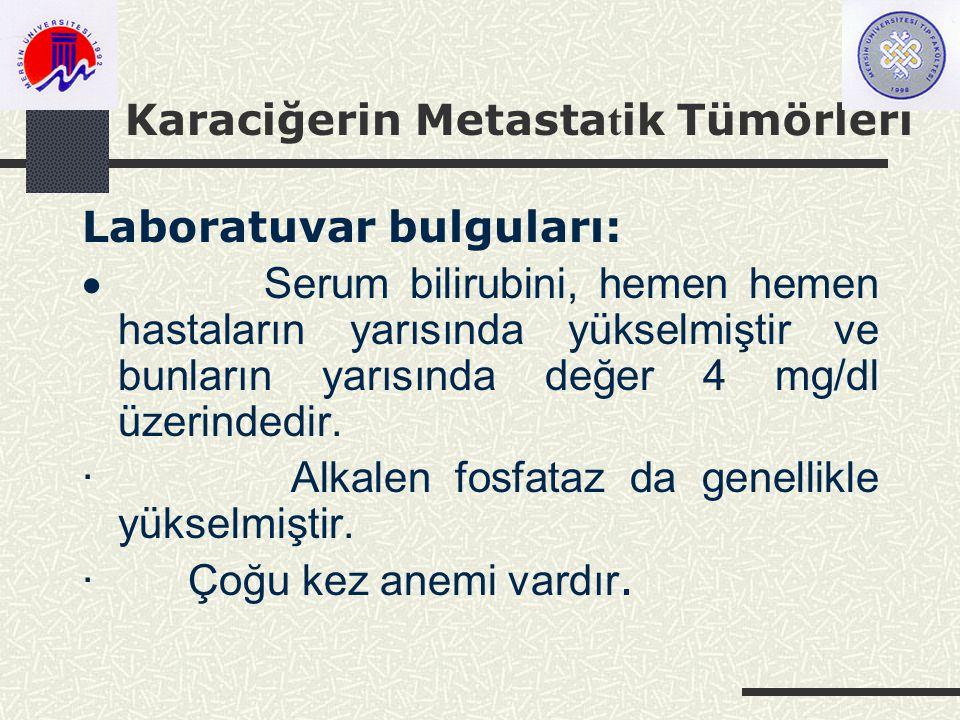 Karaciğerin Metasta t ik Tümörleri Laboratuvar bulguları:  Serum bilirubini, hemen hemen hastaların yarısında yükselmiştir ve bunların yarısında değer 4 mg/dl üzerindedir.