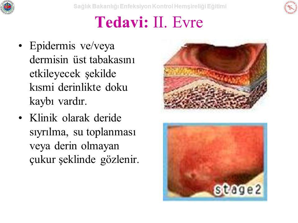 Sağlık Bakanlığı Enfeksiyon Kontrol Hemşireliği Eğitimi Tedavi: II.