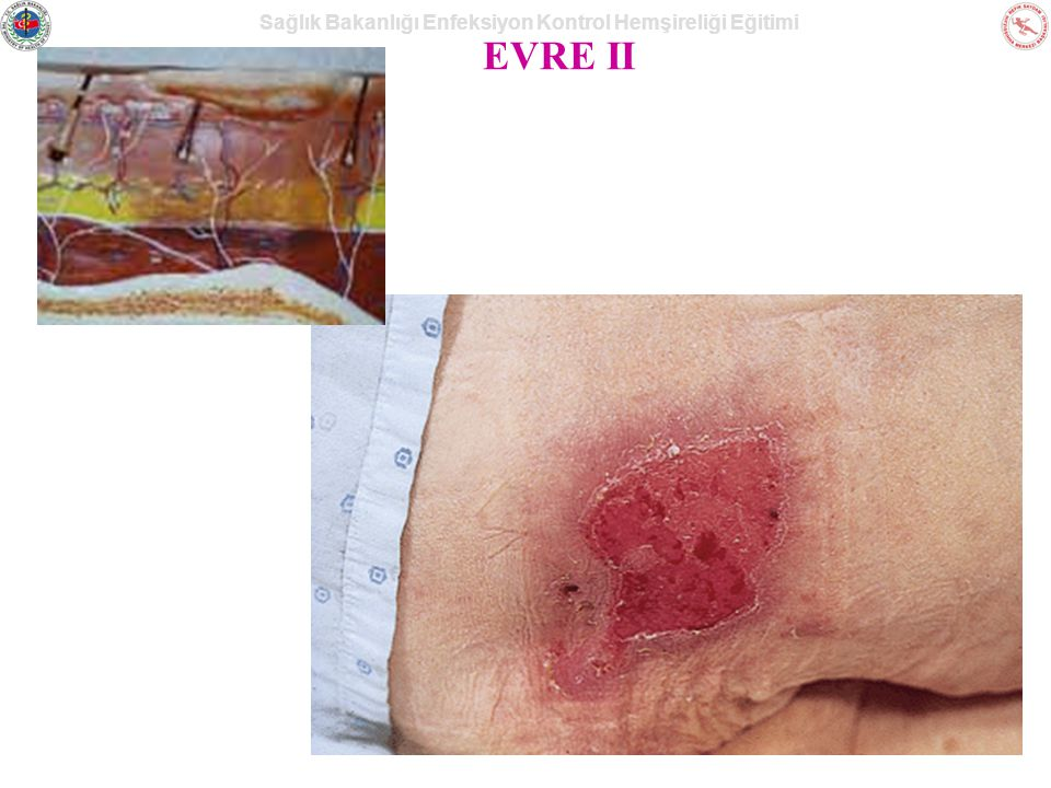 Sağlık Bakanlığı Enfeksiyon Kontrol Hemşireliği Eğitimi EVRE II