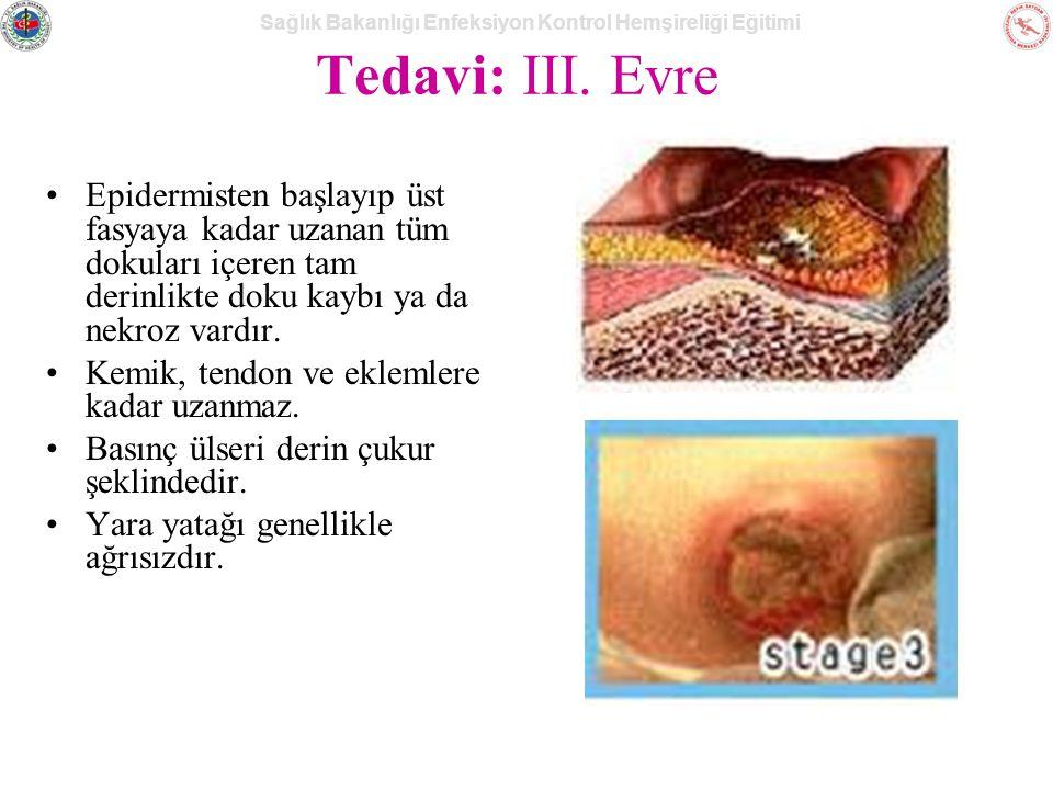 Sağlık Bakanlığı Enfeksiyon Kontrol Hemşireliği Eğitimi Tedavi: III.