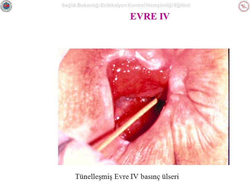 Sağlık Bakanlığı Enfeksiyon Kontrol Hemşireliği Eğitimi EVRE IV Tünelleşmiş Evre IV basınç ülseri