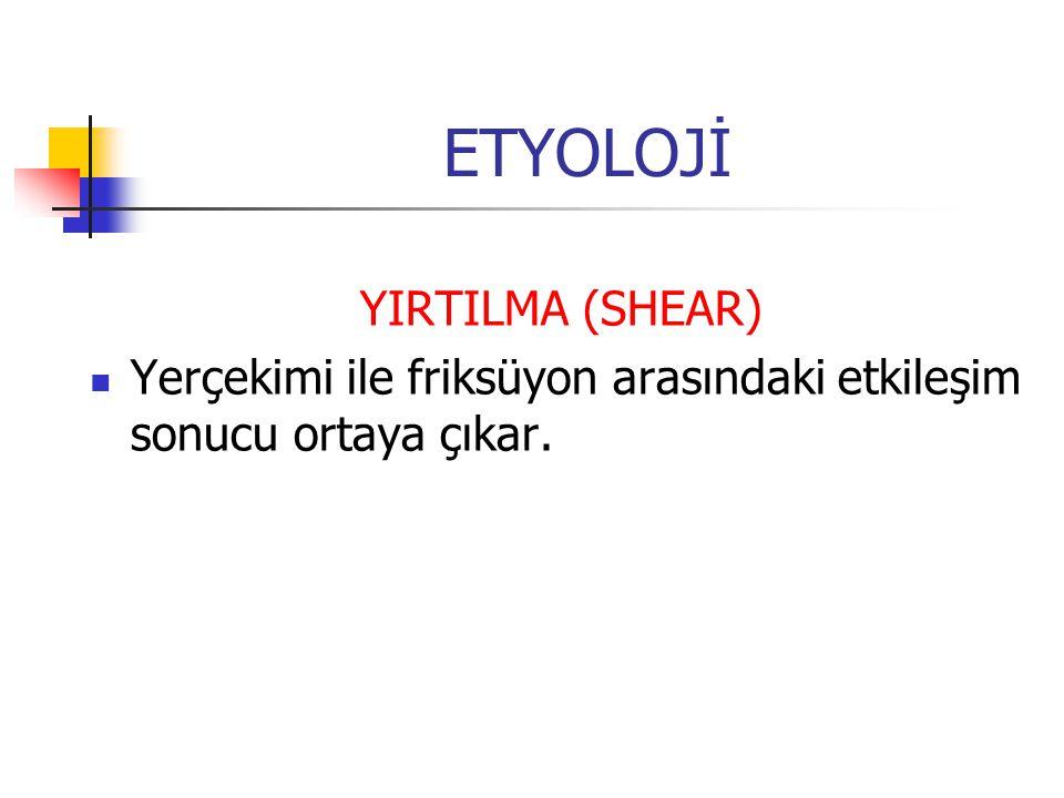 ETYOLOJİ YIRTILMA (SHEAR) Yerçekimi ile friksüyon arasındaki etkileşim sonucu ortaya çıkar.
