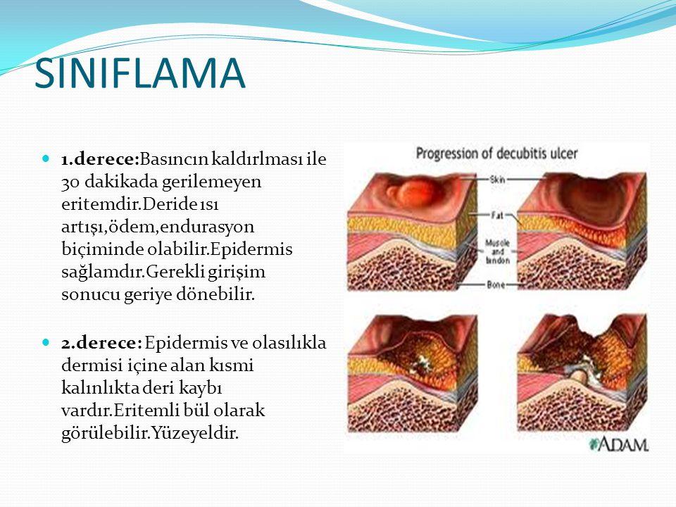 Yerleşim yeri Uzun süre yatan geriatrik ve pediatrik hastalarda oksiputta Torakal kifozun olduğu spinöz çıkıntılar üzerinde Yaşlı,diyabetik hastalarda topuklarda