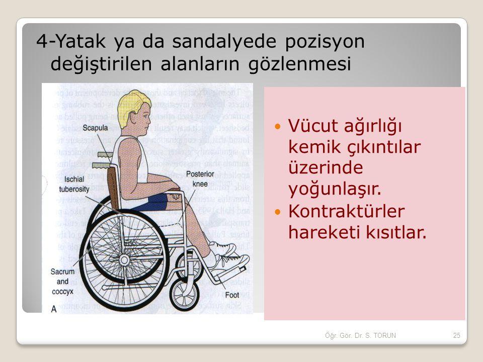4-Yatak ya da sandalyede pozisyon değiştirilen alanların gözlenmesi Vücut ağırlığı kemik çıkıntılar üzerinde yoğunlaşır. Kontraktürler hareketi kısıtl