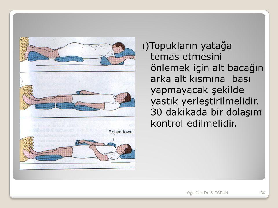 ı)Topukların yatağa temas etmesini önlemek için alt bacağın arka alt kısmına bası yapmayacak şekilde yastık yerleştirilmelidir. 30 dakikada bir dolaşı