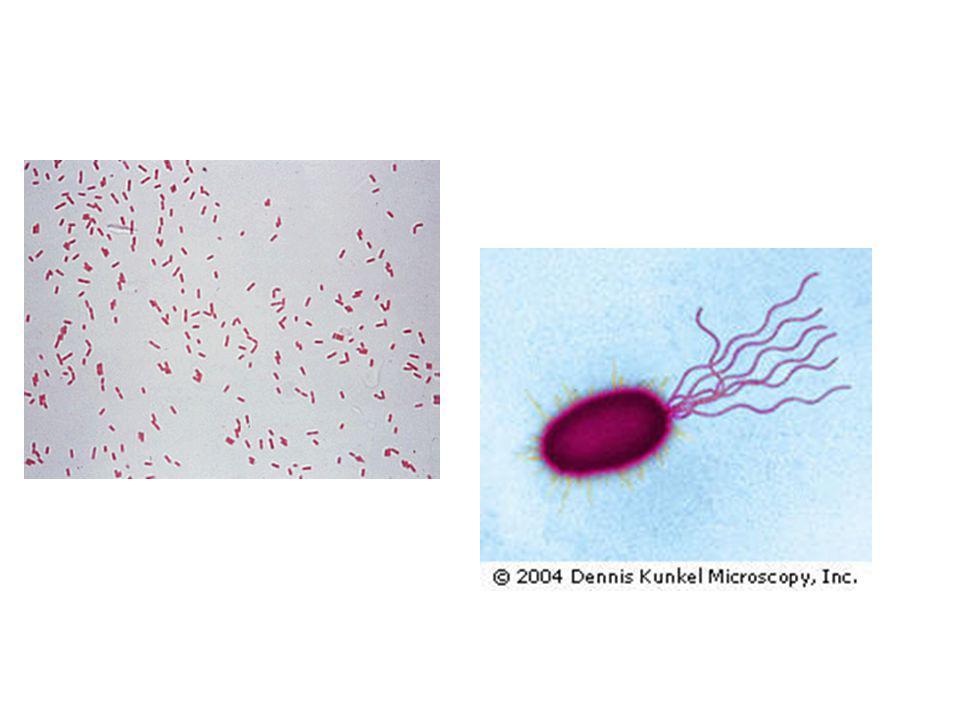 Pseudomonas aeruginosa Sporsuz, Bir ucunda bir veya üç adet kirpiği vardır ve hareketlidir.
