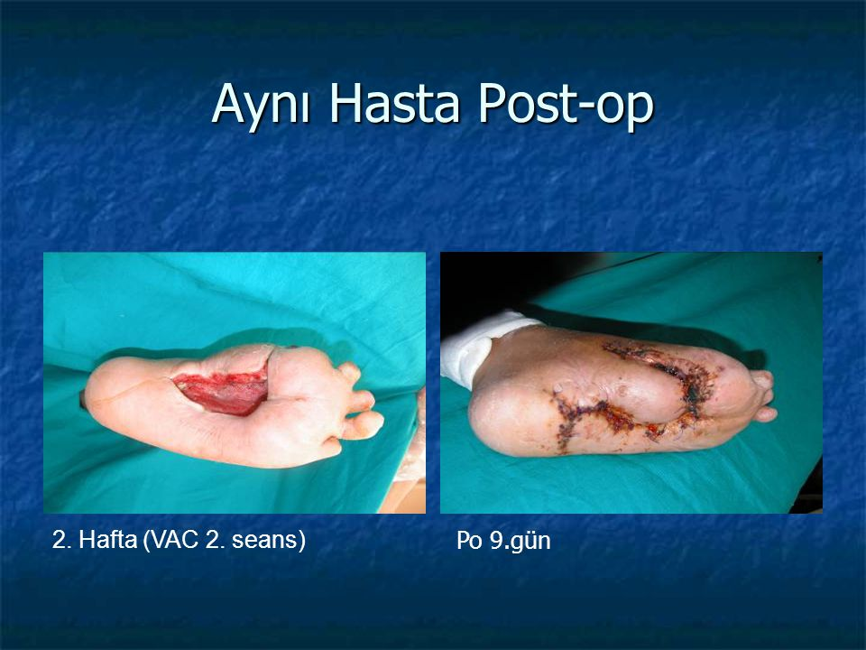Aynı Hasta Post-op Po 9.gün 2. Hafta (VAC 2. seans)