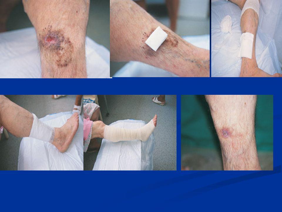 Yaralanmalarda Soğuk Uygulama Yaralanmaya bağlı, yaralanmış bölgede şişme ortaya çıkar.