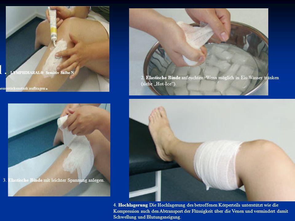 """1. LYMPHDIARAL® Sensitiv Salbe N messerrückenstark auftragen. 2. Elastische Binde anfeuchten. Wenn möglich in Eis-Wasser tränken (siehe """"Hot-Ice""""). 3."""