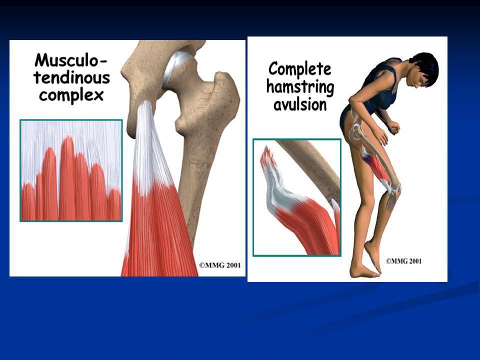 Tendon Sakatlıkları: Tendonlar:kuvveti kaslardan kemiklere aktaran organlardır.
