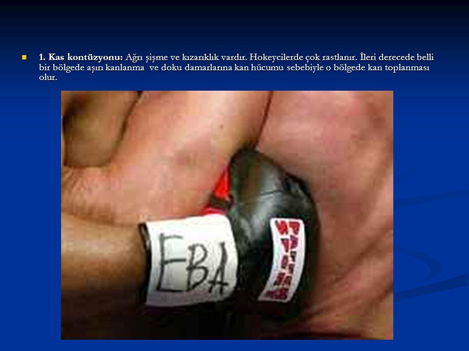 Kiriş sakatlıkları da şu şekilde ortaya çıkar; -Bir kirişin ( tendonun) fazla gerilmesi,-Kiriş yırtığı,-Kiriş kopması.