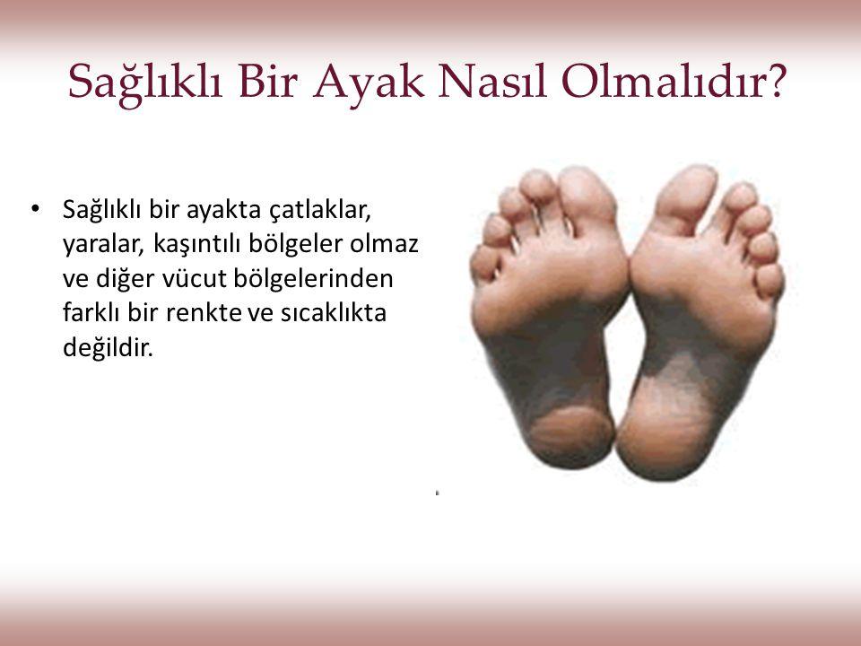 Sigarayı Bırakma Sigara ayaklara giden kan miktarını azaltması sebebiyle önerilmemektedir.Sigara ayaklara giden kan miktarını azaltması sebebiyle önerilmemektedir.