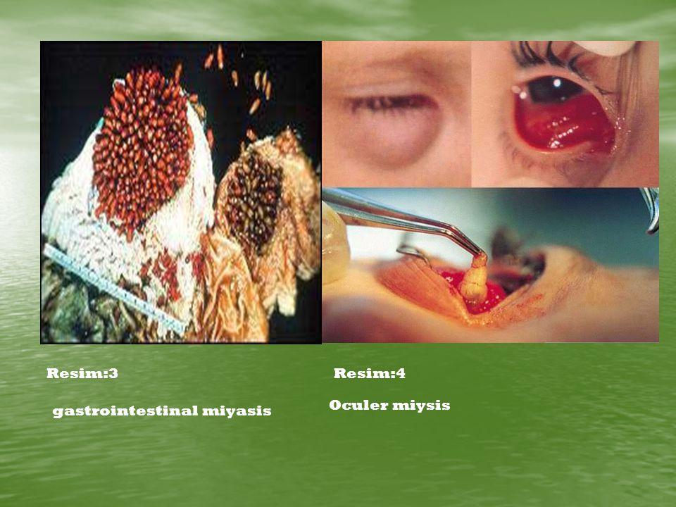 Resim:3Resim:4 gastrointestinal miyasis Oculer miysis