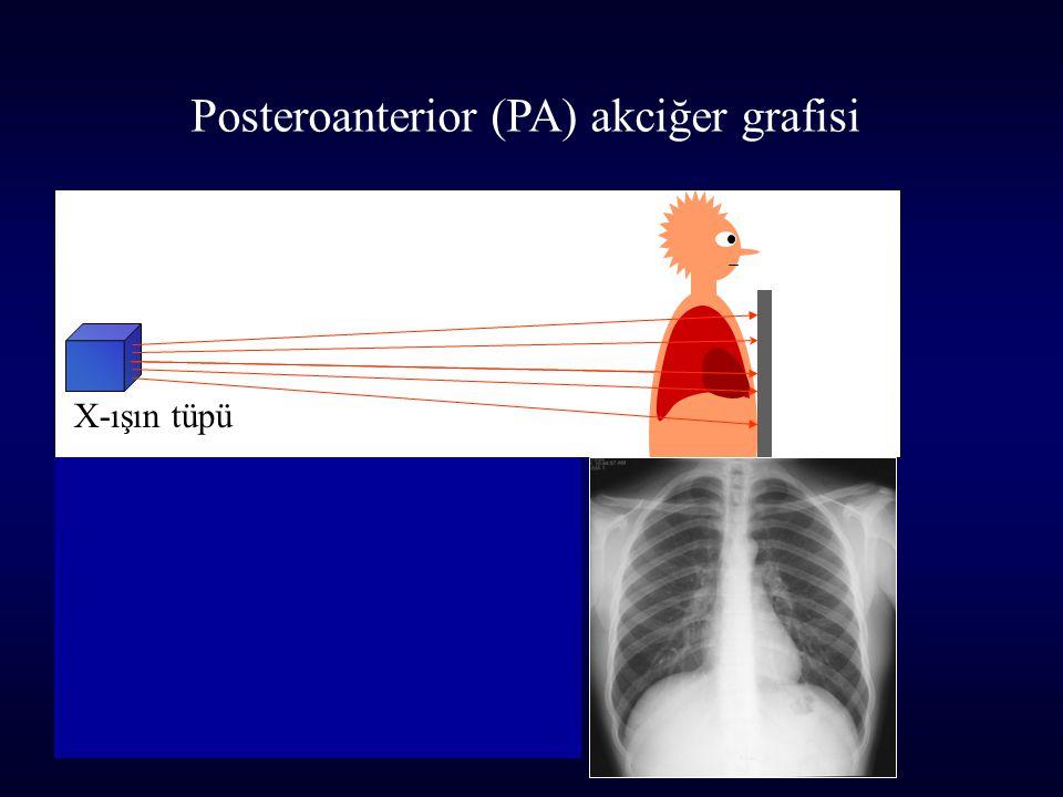 X-ışın tüpü Lateral (sol yan) akciğer grafisi Sol yan akciğer grafisinde x-ışınları sağ taraftan girip sol taraftan çıkar.