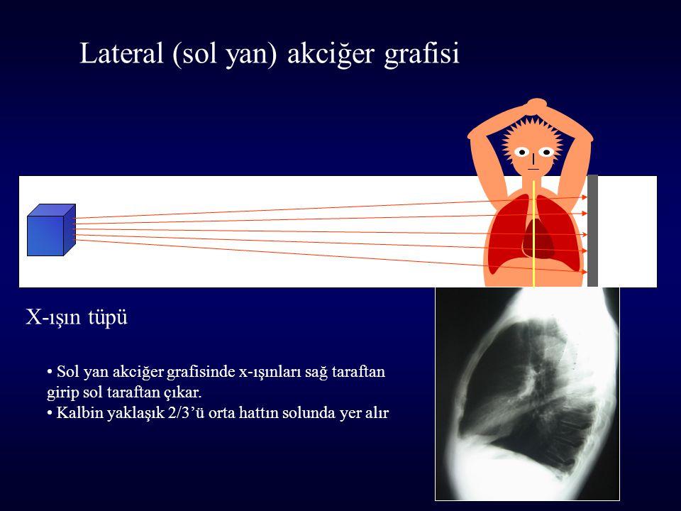 X-ışın tüpü Lateral (sol yan) akciğer grafisi Sol yan akciğer grafisinde x-ışınları sağ taraftan girip sol taraftan çıkar. Kalbin yaklaşık 2/3'ü orta