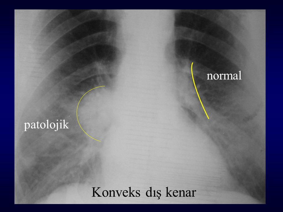 Konveks dış kenar normal patolojik